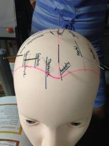 Acupuncture cranienne sur modele