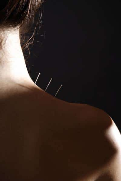 acupuncture douleur au cou