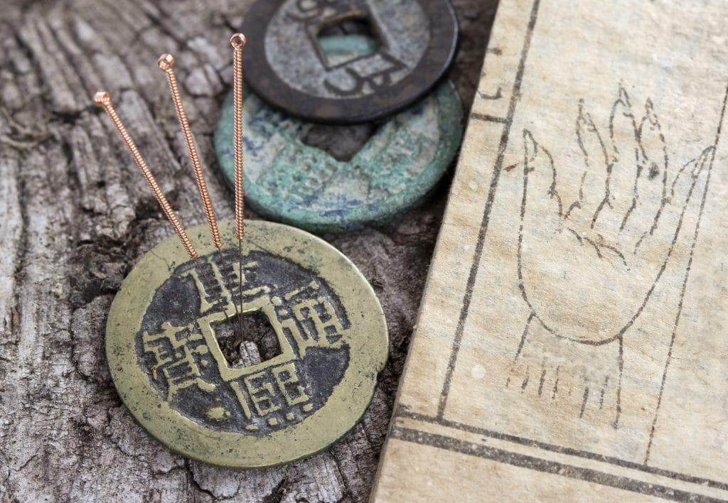 aiguille acupuncture médecine chinoise